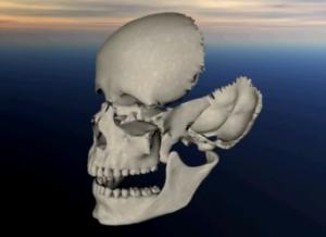 Движение костей лицевого черепа