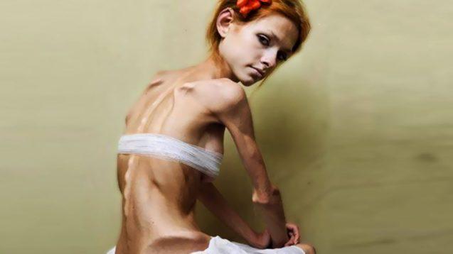 Анорексия — причины симптомы и лечение