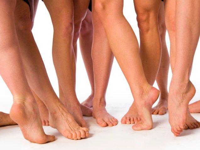 Варикоз — заболевание вен нижних конечностей