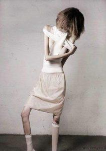 анорексия болезнь