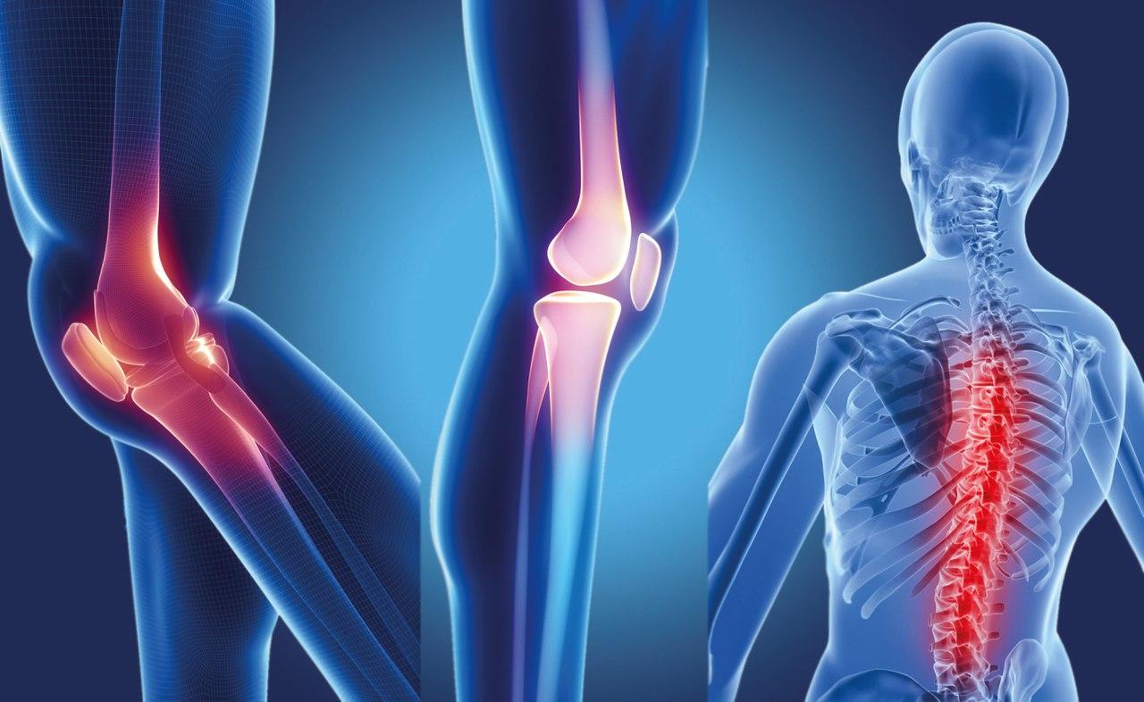 Болят Суставы Остеопороз Лечение