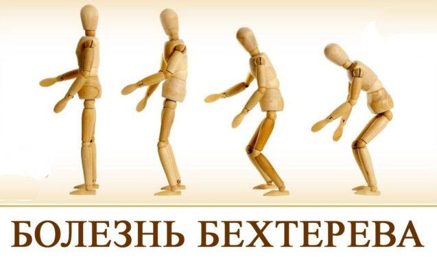 От египетских мумий до наших дней — болезнь Бехтерева