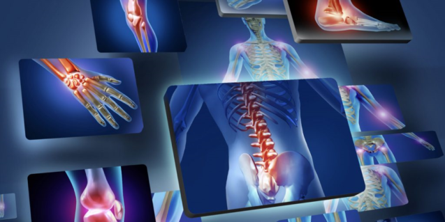 Артрит — симптомы, диагностика, лечение