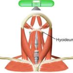 мышцы шеи и атлант