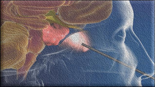 Краниосакральная терапия — тонкая настройка тела