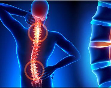 Остеохондроз — виды, периоды развития и лечение